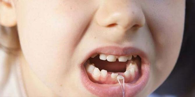 Şaka Gibi! Süt Dişlerini Atmayın Hayat Kurtarıyor!
